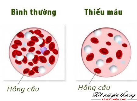 thieu-mau-anh-huong-xau-den-chieu-cao